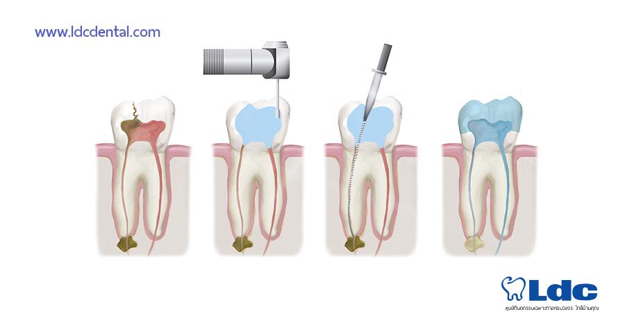 root-dental