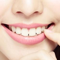 ปิดช่องห่างระหว่างฟัน (DIASTEMA CLOSURE)