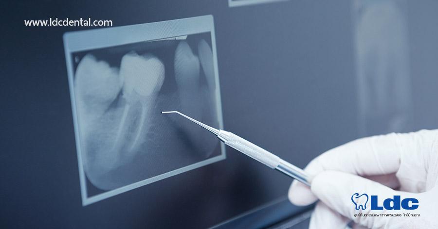 x-ray-01