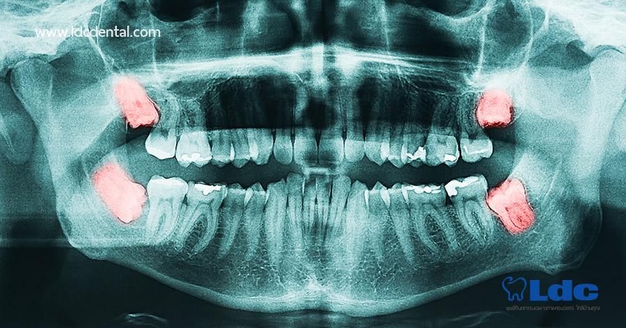 x-ray-02