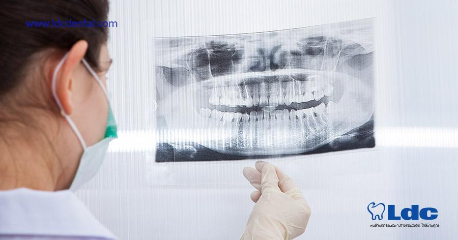 x-ray-03