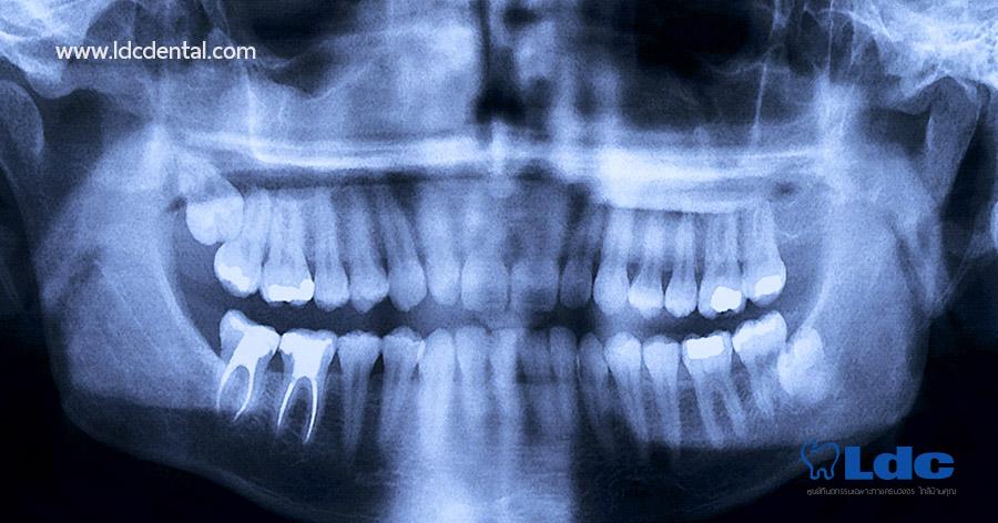 x-ray-04