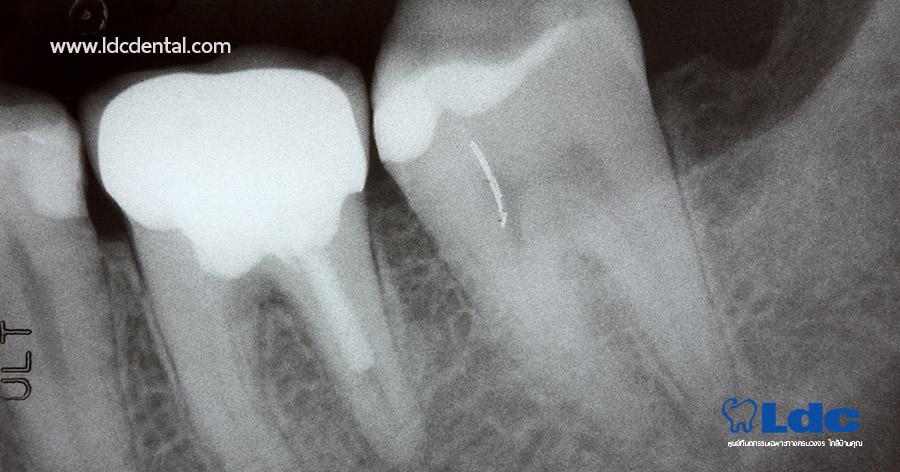 x-ray-05